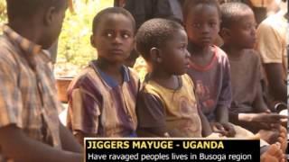 JIGGERS BUSOGA REGION UG IGNATIUS thumbnail