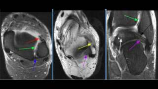 MRI Ankle Case 15