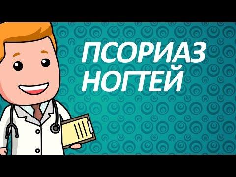 Псориаз ногтей: описание, лечение, опыт форума « Псориаз