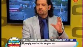 Hiperpigmentación en piernas-Dr Pedrazzoli 18042013