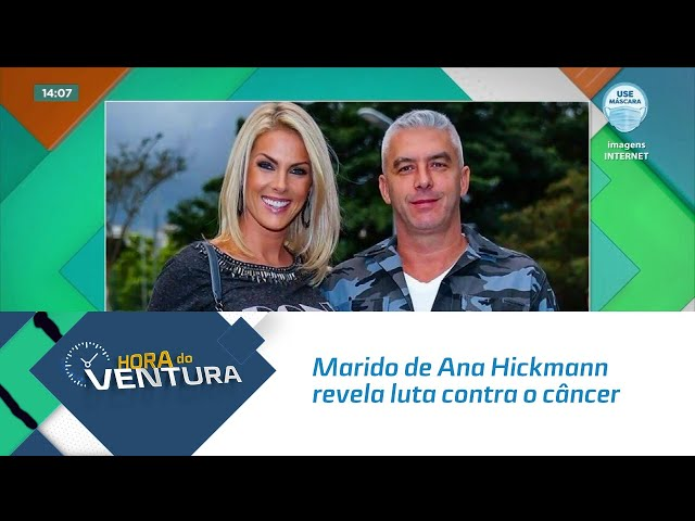 Marido de Ana Hickmann revela luta contra o câncer