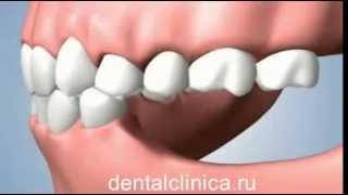 Стоматология лечение зубов имплантация в Москве Санкт-Петербурге протезирование европейское качество(, 2014-03-25T19:50:49.000Z)