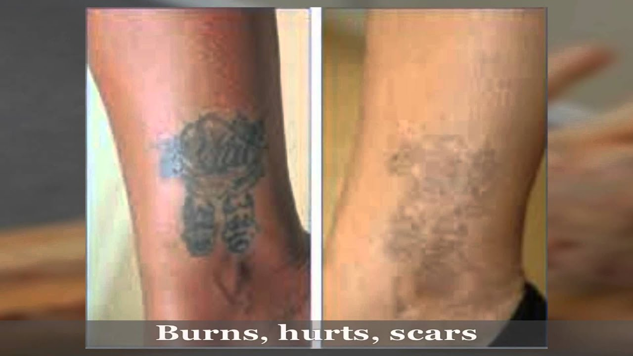 Tattoo removal gone wrong laser treatment youtube for Natural remedies for tattoo removal