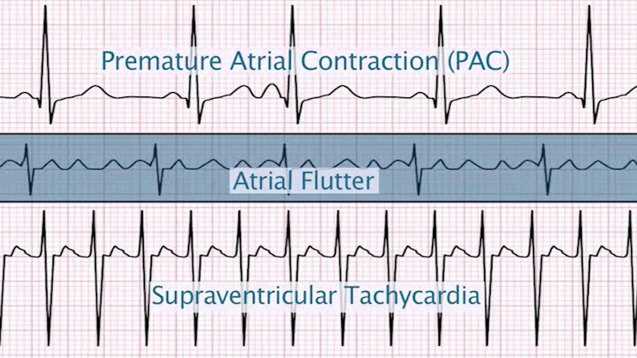 Inappropriate Ventricular Tachycardia
