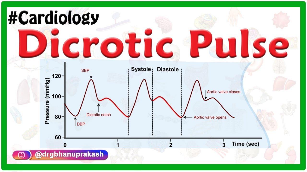 Dicrotic pulse – Internal medicine – Cardiology #cardiology