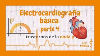 Electrocardiografía básica: 4 - trastornos de la onda P.