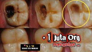 Cara Mengobati Sakit Gigi Berlubang || Obat Sakit Gigi Berlubang Paling Ampuh.