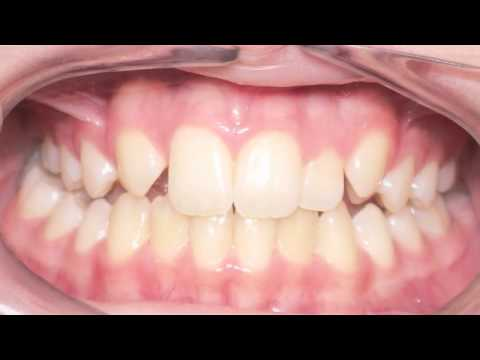 Canine Substitution (Missing Lateral Incisor): Kyger Orthodontics