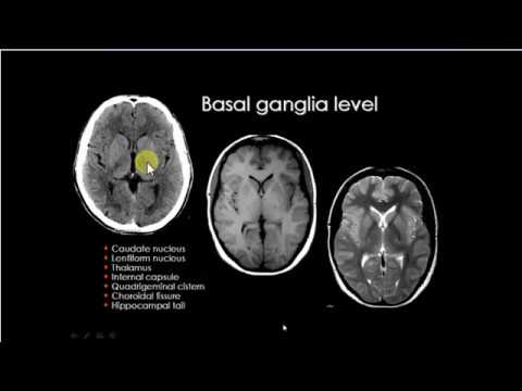 Basal ganglion anatomy