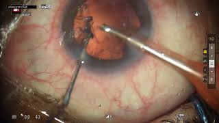 2.2 PHACOEMULSIFICATION DIRECT CHOP AND HYDRO INJECTION OF NIDEK IOL UNEDITED