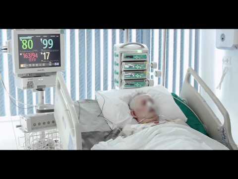 Аденоиды - Зябкин Илья Владимирович, ведущий ЛОР Филатовской больницы