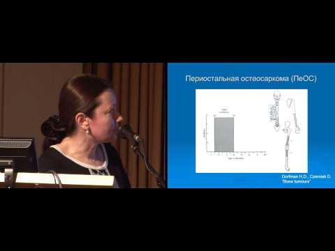 Дифференциальная диагностика остеосарком