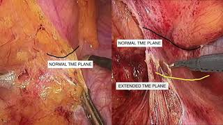 Download Laparoscopic low anterior resection with extended TME for locally advanced rectal cancer