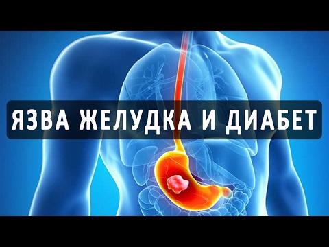 Прободная язва желудка: симптомы, операция, прогноз