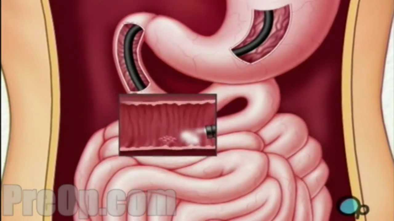 Our Services | Gastroenterology Consultants of Long Island