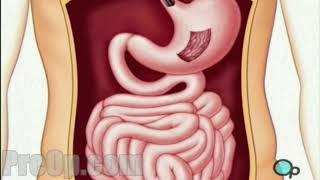 Endoscopy - Upper GI Surgery PreOp® Patient Education