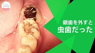 奥歯が痛くて銀歯を外してみたら虫歯だった! Treatment For Tooth Decay Under Stainless Steel Crowns thumbnail