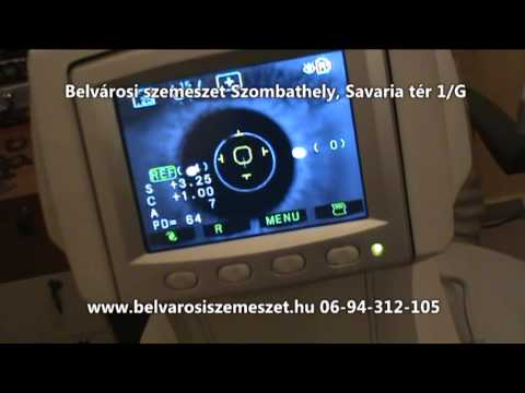 Belvárosi szemészet - Trend optika - YouTube 946aeb1ad8
