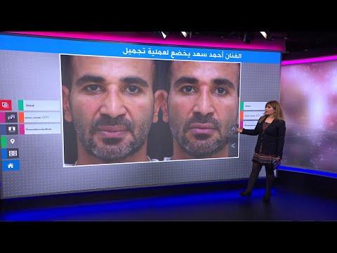 كيف يبدو الفنان المصري أحمد سعد بعد عملية نحت الوجه؟