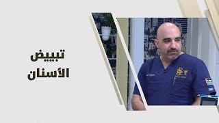 د. خالد عبيدات - تبييض الأسنان