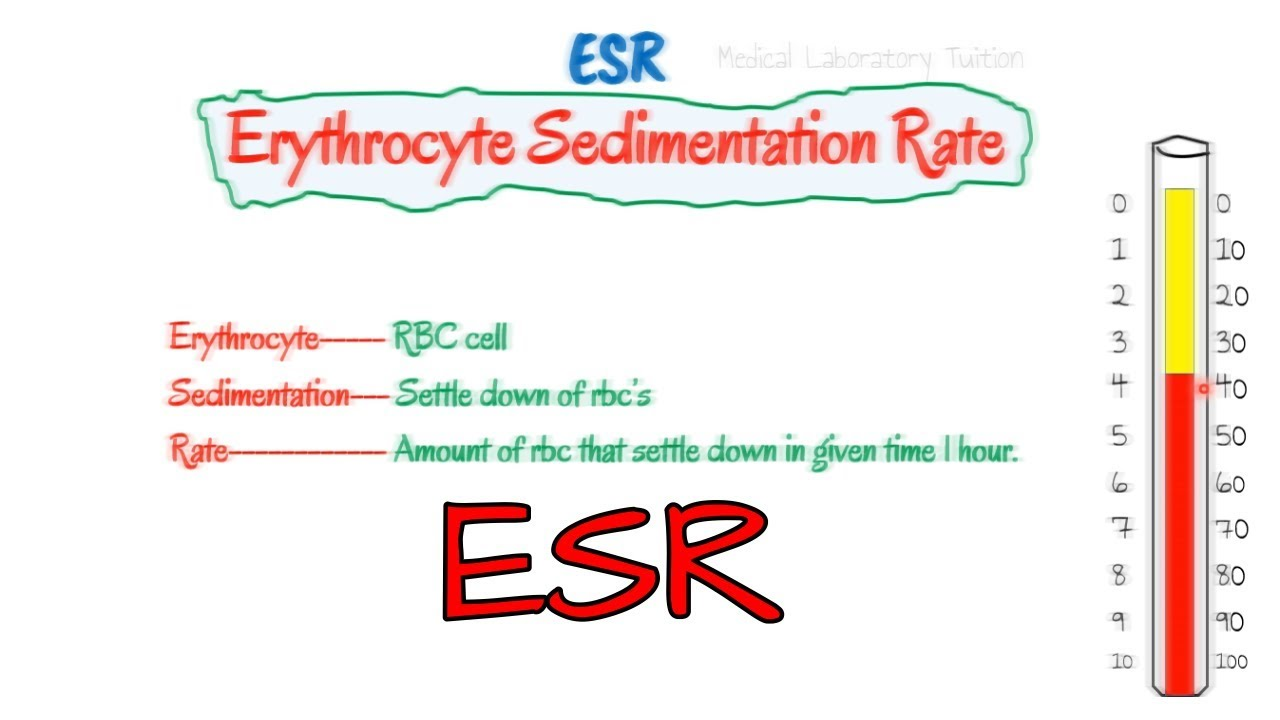 what is sed rate blood test
