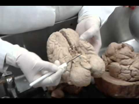 Neuroanatomía - Tálamo y Diencefalo - YouTube