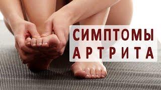 видео Артрит: симптомы и лечение, признаки, причины, как и чем лечить