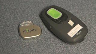 New Implant Device A Breakthrough In Sleep Apnea Treatment