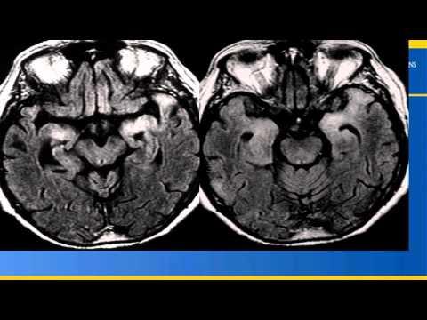 e-Radiology Learning | Neuroradiology Pearls and Pitfalls (3 of 4) thumbnail