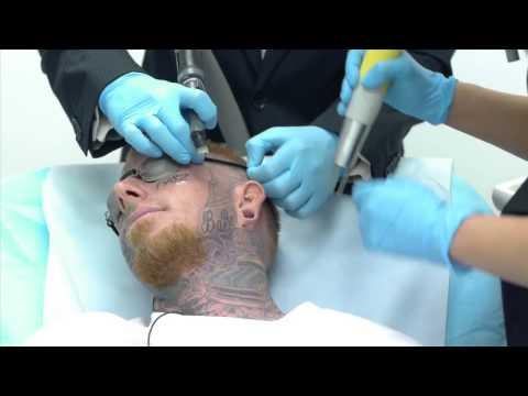 Смотреть Crazy Video of Man Getting Face Tattoo Removed онлайн