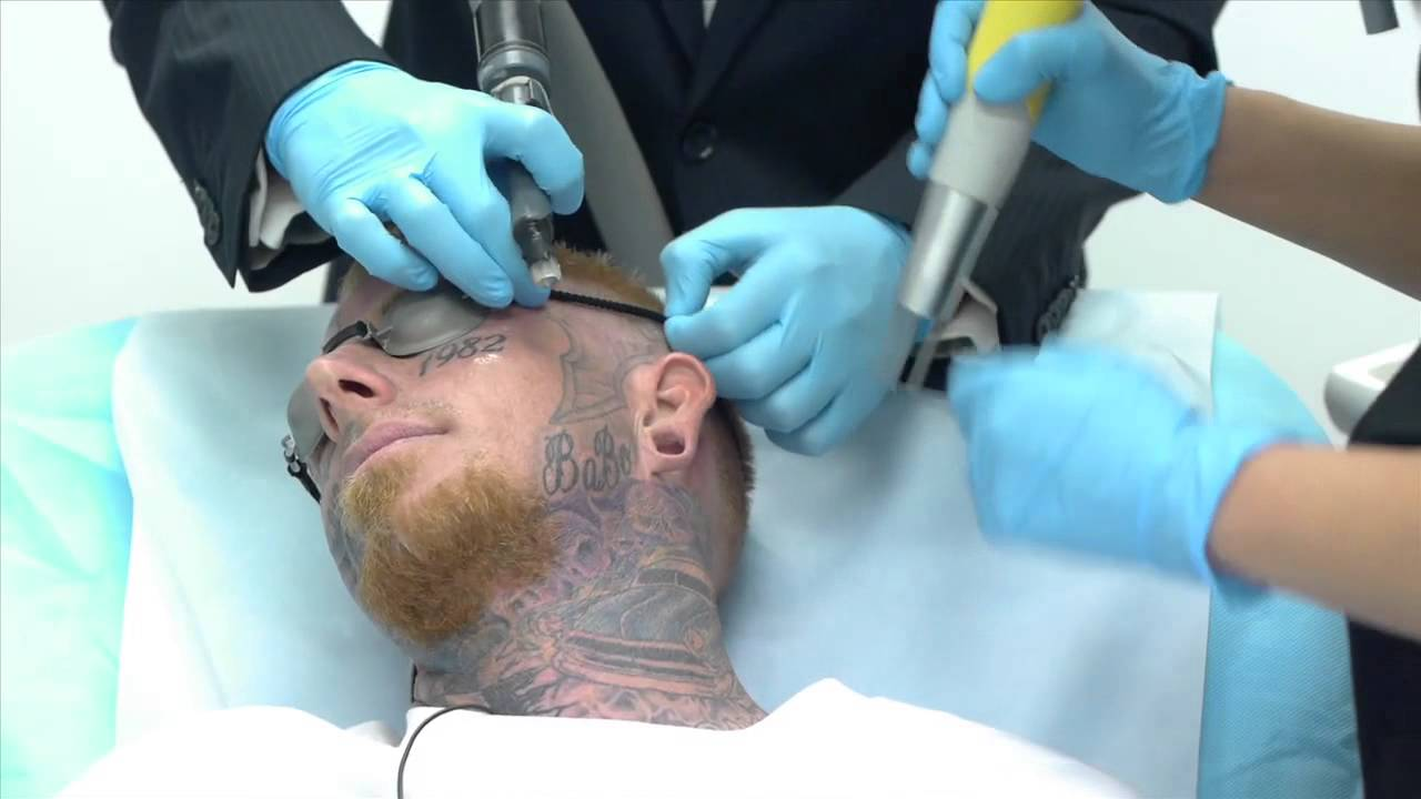 Crazy Video of Man Getting Face Tattoo Removed - YouTube