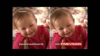 Multifocal IOL's  - Fine Vision.