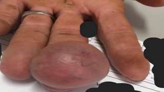 Repeat youtube video Mr. Blackhead Presents Jigger Removal, Largest Tumors and Anorexia