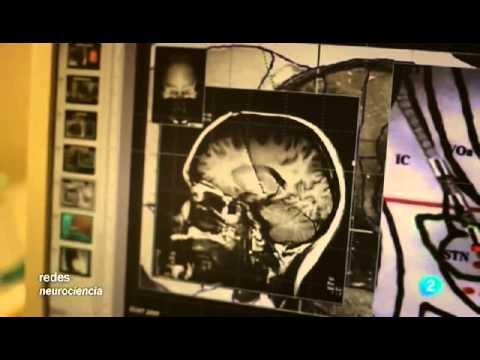 Cerebro  Vision binocular