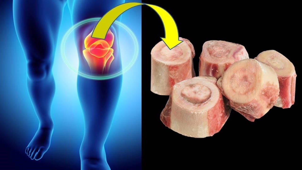 تقوي المناعة و تعالج التهاب المفاصل و ترمم عظام الجسم وتعالج مفاصل الركبتين
