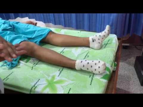 สอนทำกายภาพบำบัดให้ผู้ป่วย อัมพาต ติดเตียง ช่วยเหลือตัวเองไม่ได้ ตอน2