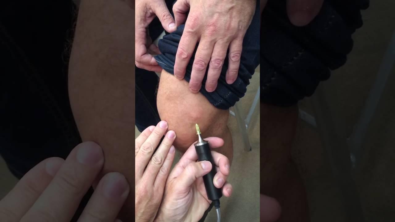 Карбокситерапия суставов боли в суставах температура