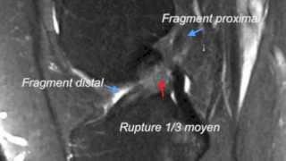 Ligament croise antérieur du Genou -  LCAE - Rupture - IRM -3D