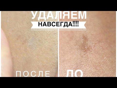 ШОК! Реальный метод убрать Пигментные пятна на лице! РАБОТАЕТ!!!