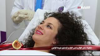 كهرمانة 15-2-2018 | تقنية حقن البلازما في الشعر لتحفيز فروة الراس - خبيرة التجميل - ميرا