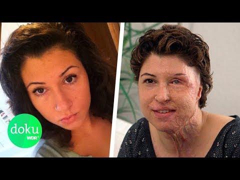 Säure-Angriff: Vanessas Leben danach | WDR Doku