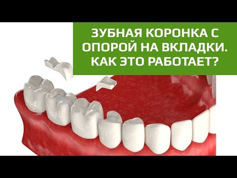 Виды зубных коронок -