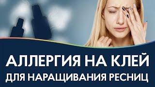 ТОП-10 засобів від алергії на клей для нарощування вій