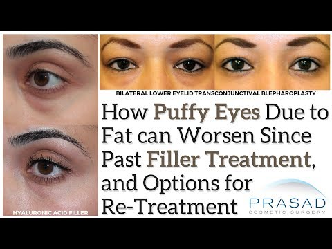 How Eye Bags can Worsen Since Filler Treatment, and a Definitive Puffiness Treatment