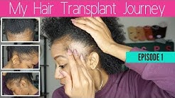 Why I Decided to Get a Hair Transplant + My Struggle With Traction Alopecia - Episode 1