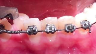 Crimpable stop-open coil spring- orthodontics Dr. Amr Asker Orthodontic courses and education