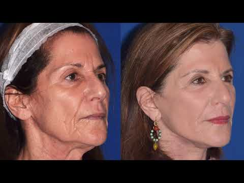 Busting Plastic Surgery Myths, Story time- spilling the tea on cosmetic procedures.