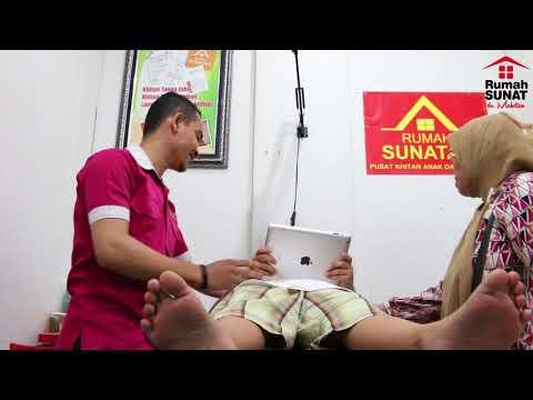 Video Tempat Sunat Laser Surabaya