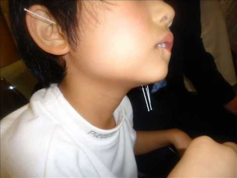 +62 878 2124 7323(xl) autisme Indonesia, autism therapy