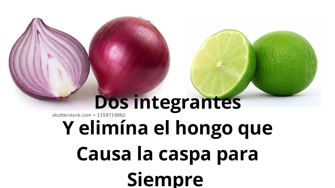 REMEDIOS CASEROS PARA CASPA Y SEBORREA